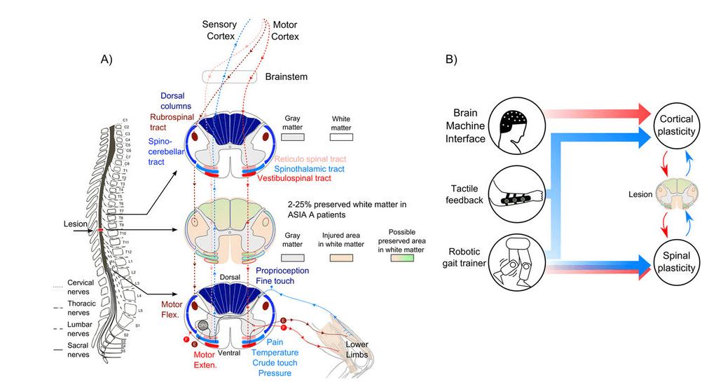 parapl Figure 6_ Hypothesis for _ - http___www.nature.com_articles_srep30383_figures_6